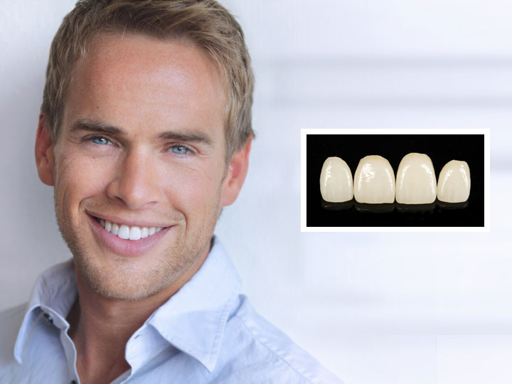 Aesthetic dentistry munich
